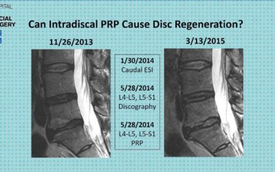Can Platelet Rich Plasma (PRP) Regenerate a Degenerative Disc?