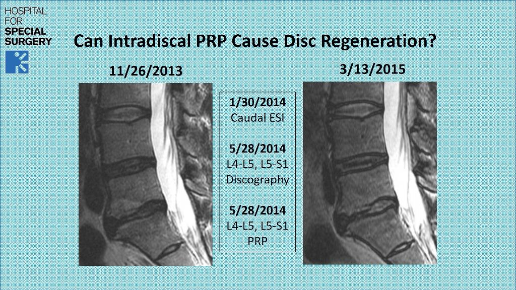 can-prp-regenerate-a-degenerative-disc