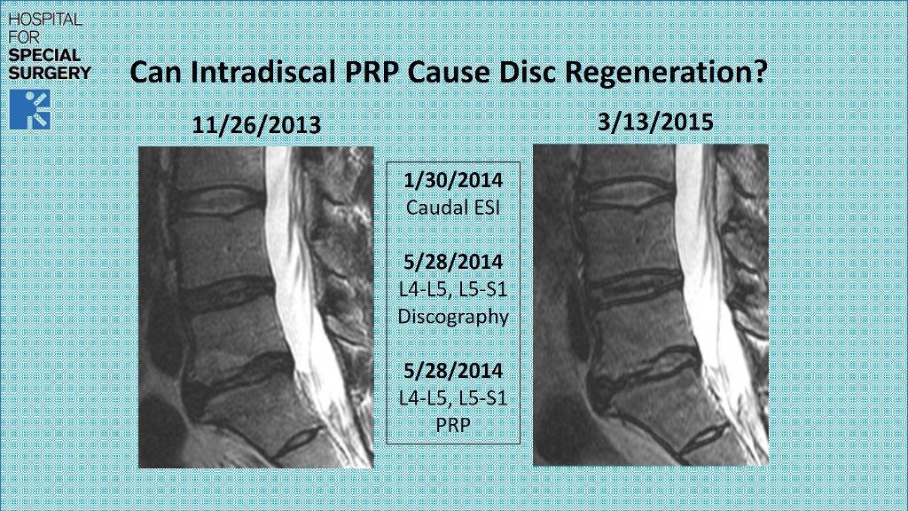 can-prp-regenerate-a-degenerative-disc